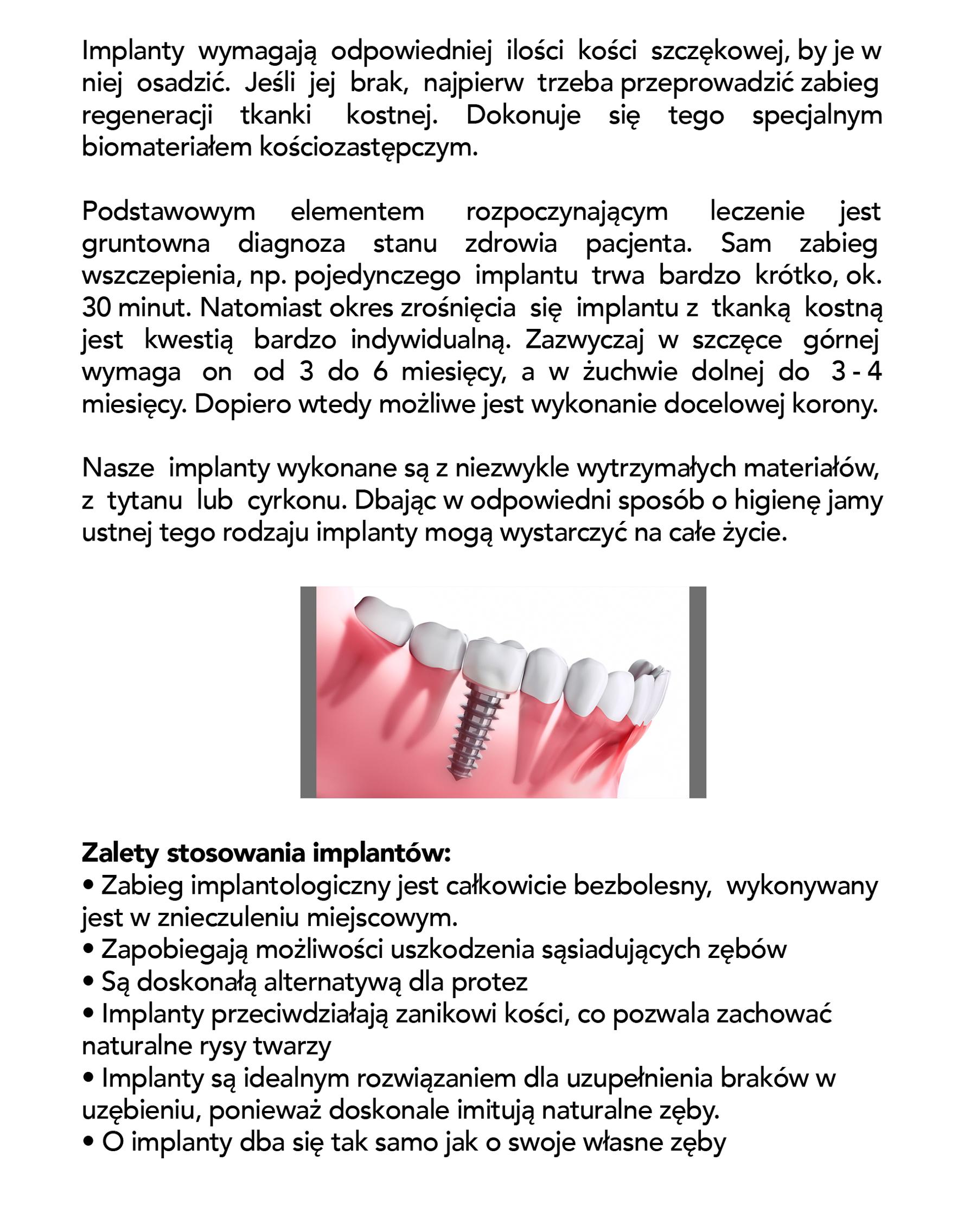 implant krakow