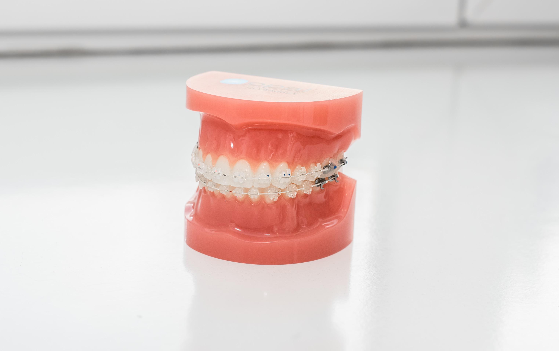 ortodoncja kraków